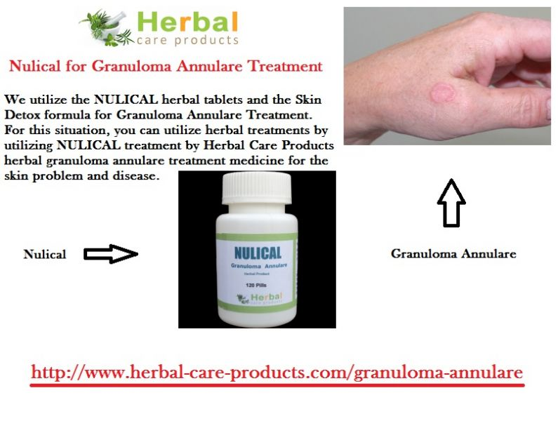 Natural Herbal Remedies for Granuloma Annulare Skin